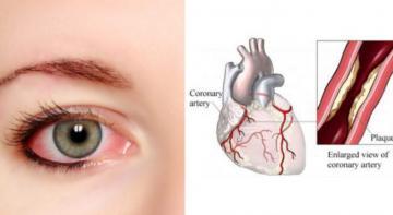 Если у вас красные глаза, причиной может быть проблема с сердцем, узнайте!