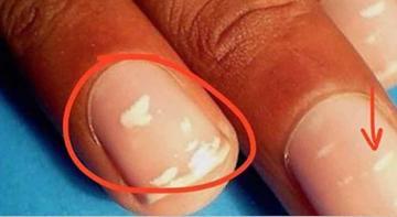 Что это за белые полосы на моих ногтях? Лейконихия!