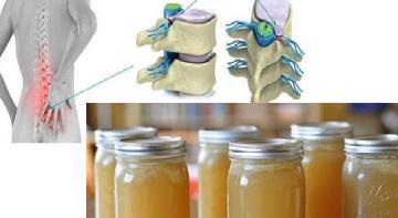 Чудо рецепт — исцелит боль в спине, ногах, лодыжках!