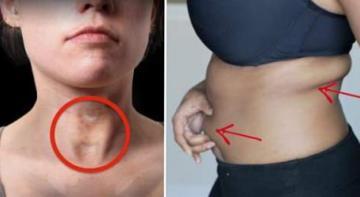 12 признаков проблем щитовидной железы, о которых вы никогда не подумали бы