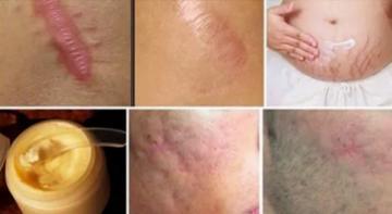 Избавьтесь от шрамов в любой части вашего тела меньше, чем за месяц
