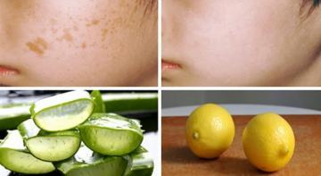 Избавьтесь от темных пятен с помощью 5 органических продуктов, которые есть у вас дома!