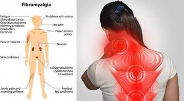 9 природных средств для лечения фибромиалгии. Каждый должен знать